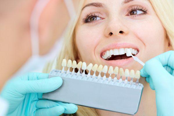 Crofton Dental Care - Teeth Veneers